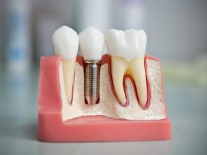 implantaciy
