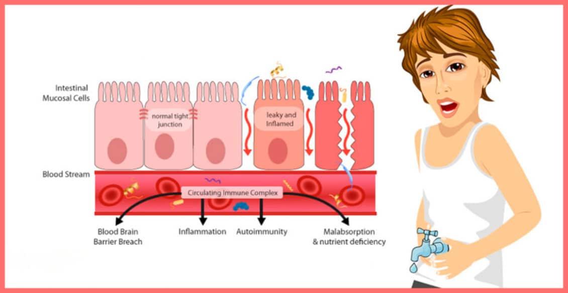 sindrom-dyrjavoj-kishki
