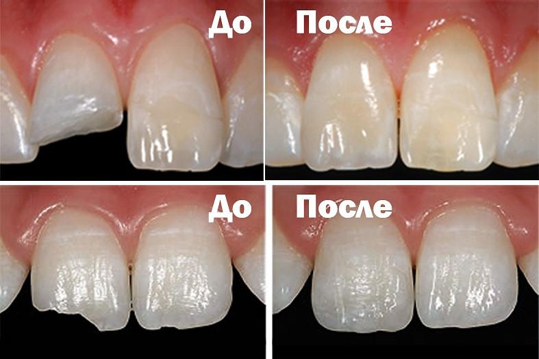 sposobi-restavracii-zubov