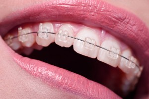 macro shot on woman mouth with braces on her teeth, low angle view, big smile, dentist concept.