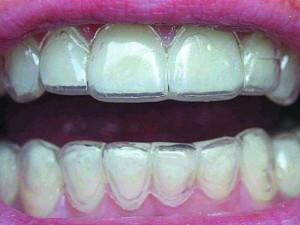 kapy-dlya-vyravnivaniya-zubov